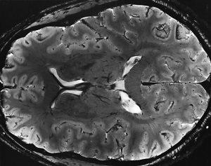 7T-MRI