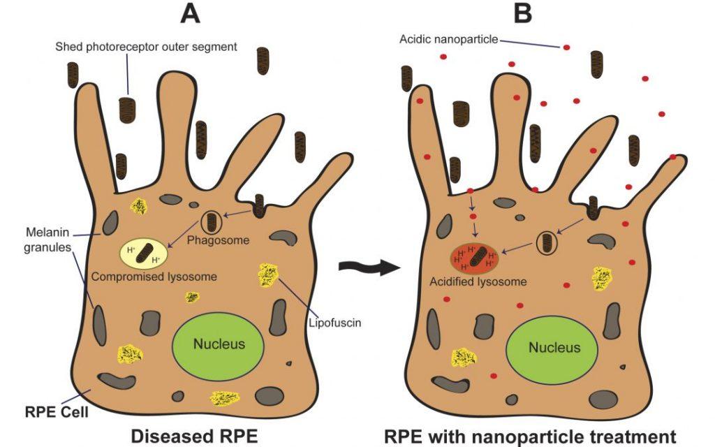 nanoparticle
